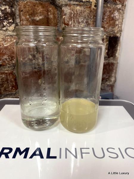 serum and debris